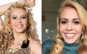 Joelma faz botox, tem sorriso e nariz novos, mas se recusa a mudar o cabelo