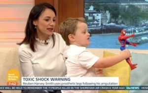 Menino de três anos tem pernas e dedos amputados por erro de diagnóstico